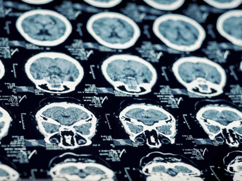 Chicago-traumatic-brain-injury-lawyer